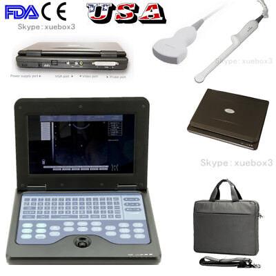 Fda Portable 10.1 Laptop Ultrasound Scanner Machine Convex Transvaginal Probe