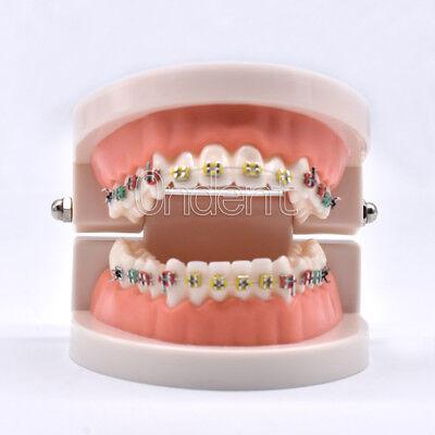 Orthodontic Dental Standard Teeth Hoop Adult Model Metal Brackets Ligature Ties