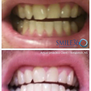 Professional Teeth Whitening in Clinic