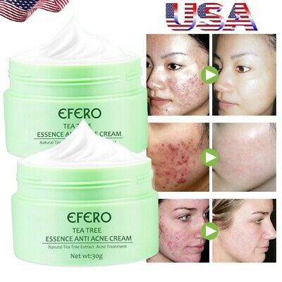 Pro Acne Scar Removal Cream Face Body Skin Repair Acne Spot Blemish Treatment US