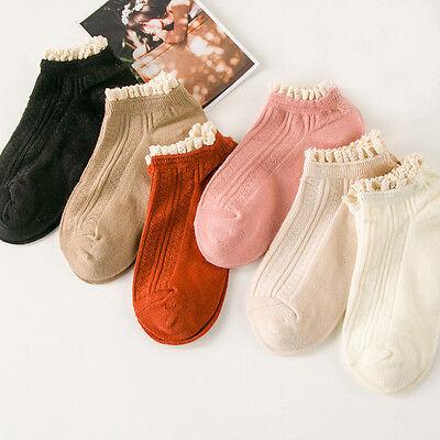 2017 Sweet Lace Soft Cozy Socks Harajuku Solid Cotton Casual Short Women Socks
