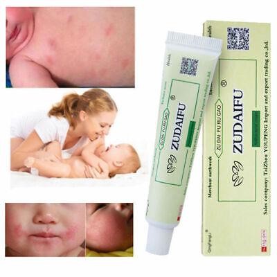 15g Psoriasis Cream Dermatitis Eczematoid Ointment Treatment Skin Care Cream Hot