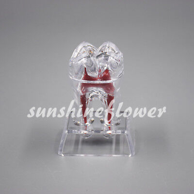 1 Pc Separable Crystal Base Hard Plastic Teeth Model Dental Tooth Molar Model