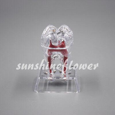 1 Pc Separable Crystal Base Hard Plastic Teeth Model Dental Tooth Molar Model