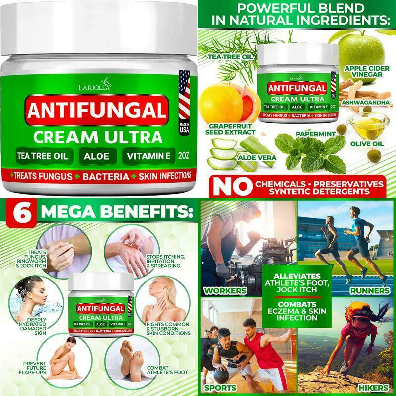 Natural Antifungal Cream Body Acne Effective Treatment For T
