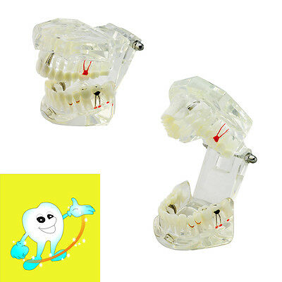 Dental Demonstrative Implant Disease Teeth Model With Restoration Bridge Tooth