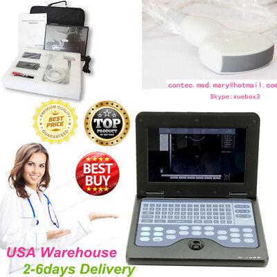 B-ultrasound Machine Systemssmart Laptop Ultrasound Scanerconvex Probeusa Hot