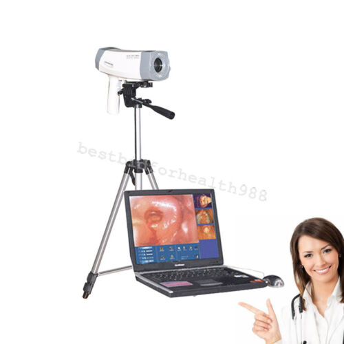 Digital LED Electronical Colposcope Sony Color Video 850000 Camera diagnosis Kit