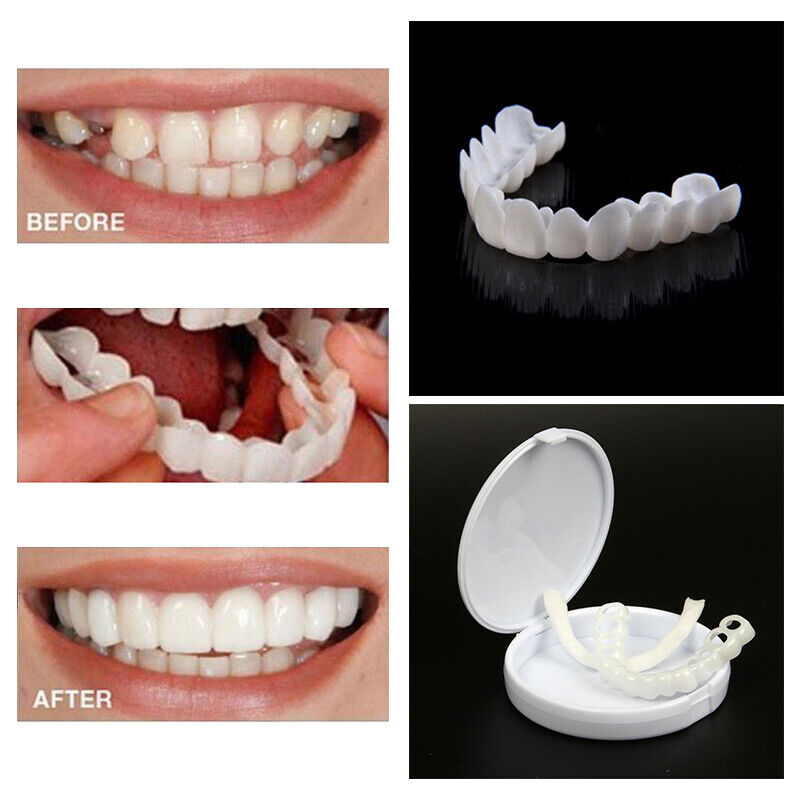 Dental Orthodontic Teeth Corrector Braces Tooth Retainer Str