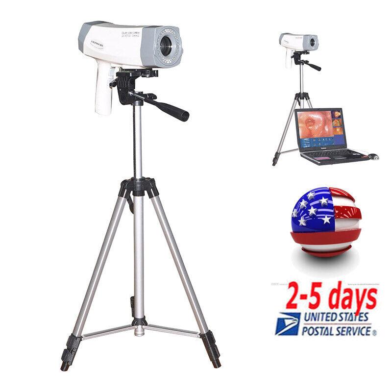 Professional Digital Video Electronic Colposcope 4800000 Pixels Camera+Tripod