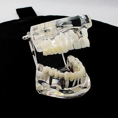 Dental Implant Teeth Repair Model With Restoration Bridge Tooth Training Study