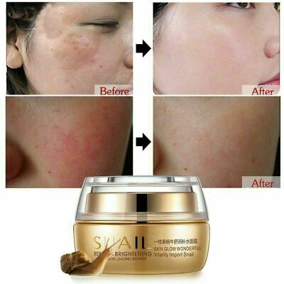 Best Korean Nature Snail Cream Face Skin Care Serum Anti Wrinkles Acne Day