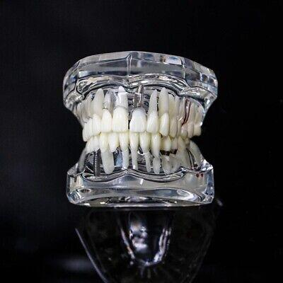 Dental Model Teeth Implant Restoration Bridge Teaching Study Dentist Dentistry