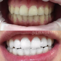 TeethWhitening | Blanchiment Dentaire Professionel | New Age Spa