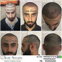 Best Hair Transplant Doctor in Turkey