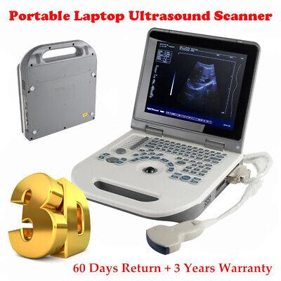 Portable Laptop Machine Digital Ultrasound Scanner 3.5mhz Convex Probe 3d Staion