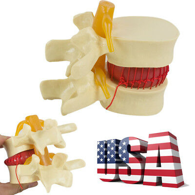 11.5 Spine Lumbar Disc Herniation Demonstration Model Medical Study Education A