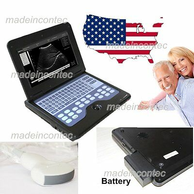 Full Digital Ultrasound Scanner System Laptop 3.5m Convex Probe Promotion Usa