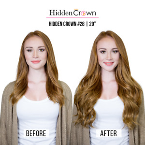 "20"" Hidden crown extensions"