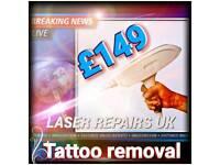 Laser tattoo removal repairs uk