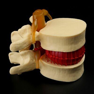 Anatomical Spine Lumbar Disc Herniation Anatomy Medical Teaching Tool Models New