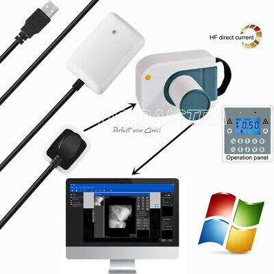 Dental Digital X-ray Imaging System Mobile Machine Digital X-ray Rvg Sensor