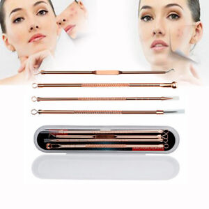 Blackhead Whitehead Pimple Spot Comedone Extractor Remover Popper Tools Kit 4Pcs