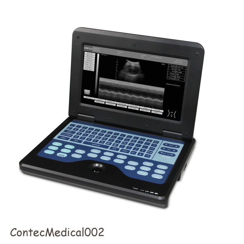 NEW CONTEC CMS600P2 DIGITAL ULTRASOUND SCANNER LCD LAPTOP MACHINE WITH 7.5MHZ LINEAR