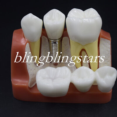 Dental Implant Demonstration Teeth Model Analysis Crown Bridge For Dentist 4 Tim