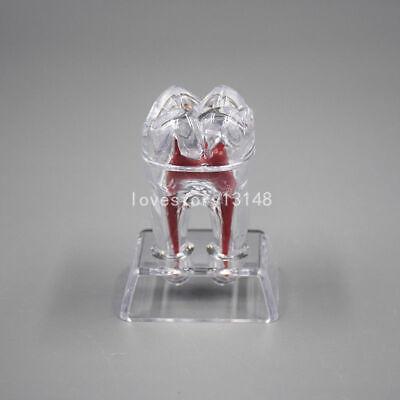3 Separable Dental Plastic Teeth Molar Model Crystal Base Demonstration Dental