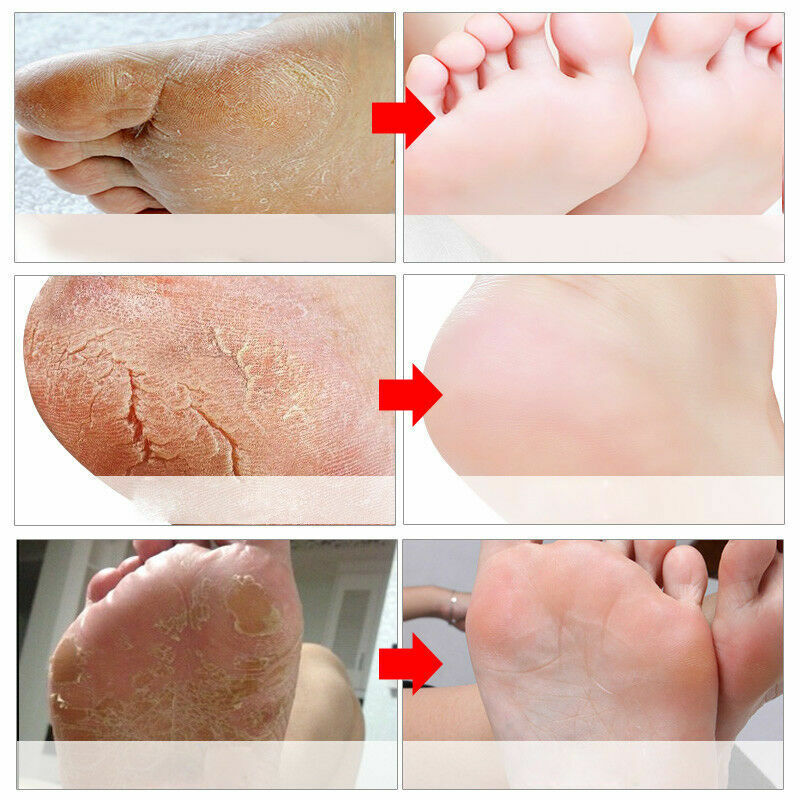 Exfoliating Foot Peeling Mask Feet Peel Mask Sheds Skin Calluses Feet USA SELLER