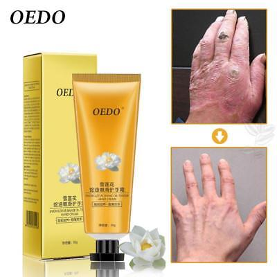 Snow Lotus Snake Oil Hand Cream Skin Care Moisturizing Nourishing Antibacterial
