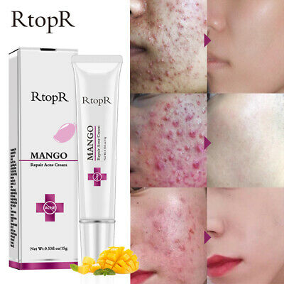 Anti Acne Cream Spots Scar Treatment Cream Shrink Pores Mois