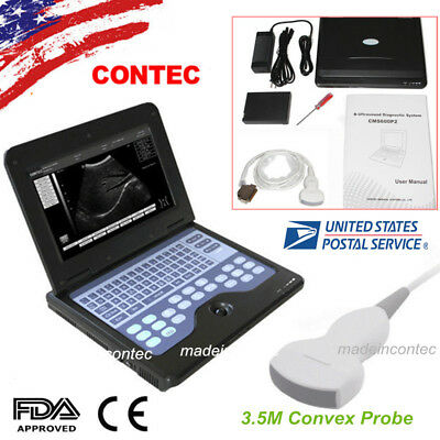 Usa Full Portable Ultrasound Scanner Laptop Machine 3.5m Convex Probe Cms600p2