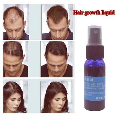 Used, Yuda Pilatory Fast Growth Product Liquid Spray Men Hair Loss Treatment Essential for sale  Shipping to Nigeria