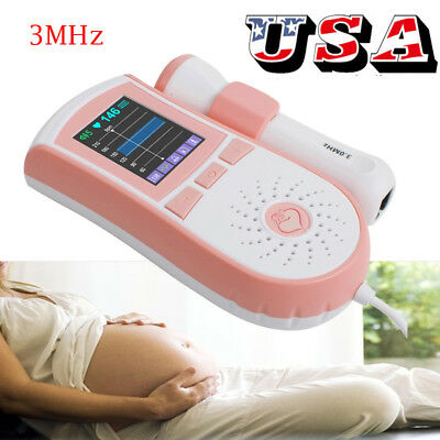 Pregnantal Baby Heart Rate Monitor Pocket Fetal Doppler Fhr Detector 3mhz Probe
