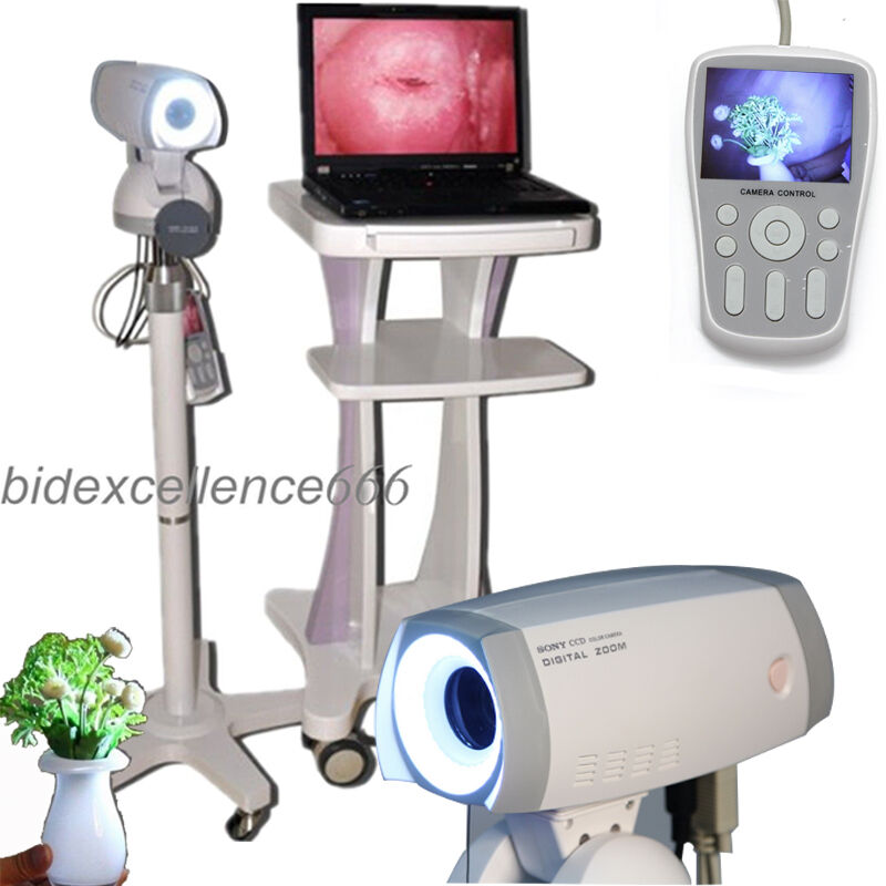 Video Electronic Colposcope Camera 830,000 pixels+software+new Foldable trolley