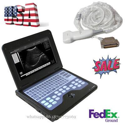 Full Digital B-ultrasound Diagnostic Linear Sensor Ultrasound Scanner Notebook