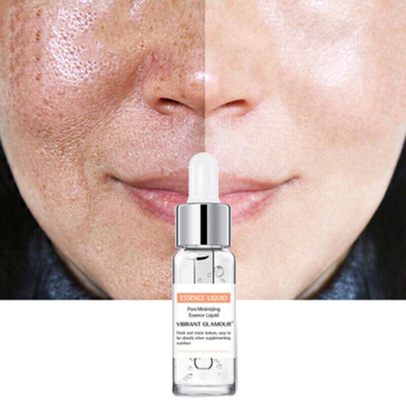 Salicylic Acid Shrink Pores Essence Face Care Control oil An