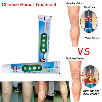 Medical Varicose Veins Treatment Leg Acid Bilges Itching Earthworm Lumps-Cream