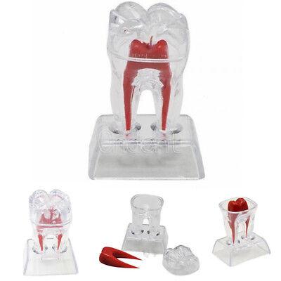 Dental Plastic Teeth Molar Model Crystal Base Separable Teaching Demonstration