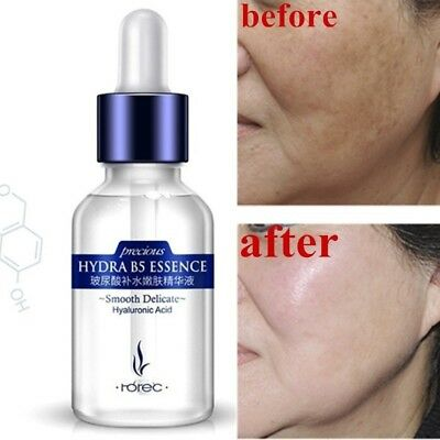 Hyaluronic Acid Skin Repair Essence Anti Aging Wrinkle Whitening Moisturizing