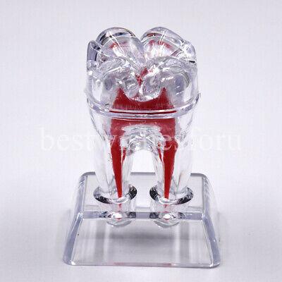 Dentist Dental Crystal Base Hard Plastic Teeth Tooth Molar Model Separable Hot