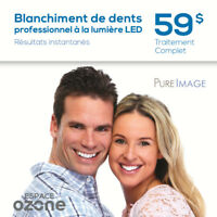 PROMOTION 59$!!! BLANCHIMENT de DENTS professionnel