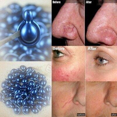 6pcs Whitening Cream EGF Capsule Anti Acne Wrinkle Redness Scar Repair - Scar Fluid