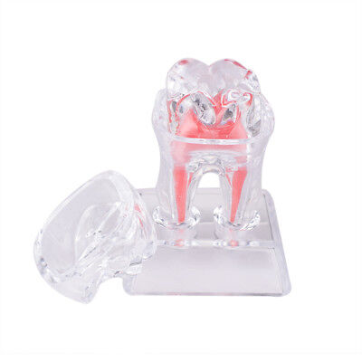 1pc Dentistry Crystal Base Hard Plastic Teeth Model Tooth Molar Model