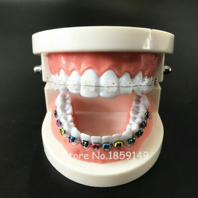 Dental Orthodontic Model With Ortho Metal Ceramic Bracket Arch Wire Buccal Tube
