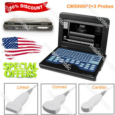 Ce Portable Ultrasound Scanner Laptop Machine 3 Probes Convexlinearcardiac Usa