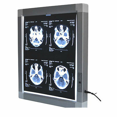 Dental X Ray Film Viewer Medical Diagnostic ENT. Image LED Illuminator View Box  for sale  Shipping to Canada