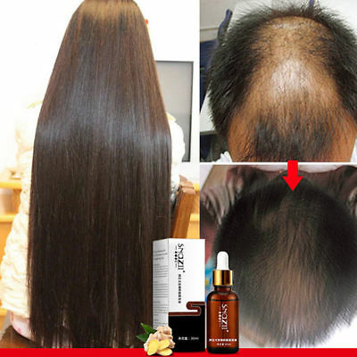 (Organic Hair Growth Essence Loss Oil Treatment Fast Natural Liquid Regrowth 30ml)